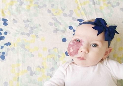 angiomas en bebés